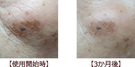 使用前と使用後の写真