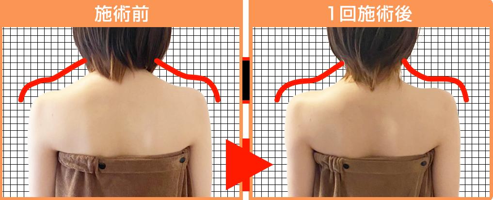 コリ固まっていた肩のラインが1回ですっきり!